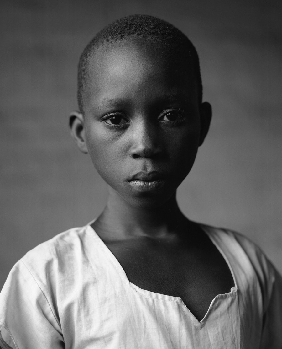 A young child dressed in a white top stares at the camera.